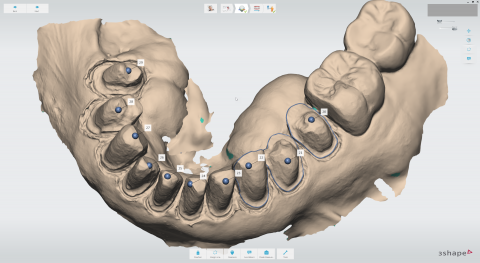 3Shape® Introduces TRIOS® AI Scanning! | CADpro Academy